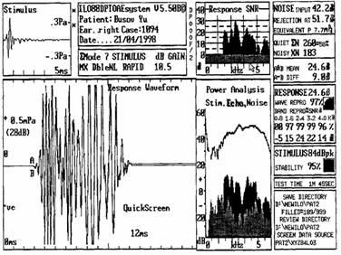 Современные аудиометрические методы исследования